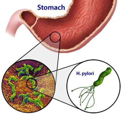 vi-khuan-helicobacter_pylori